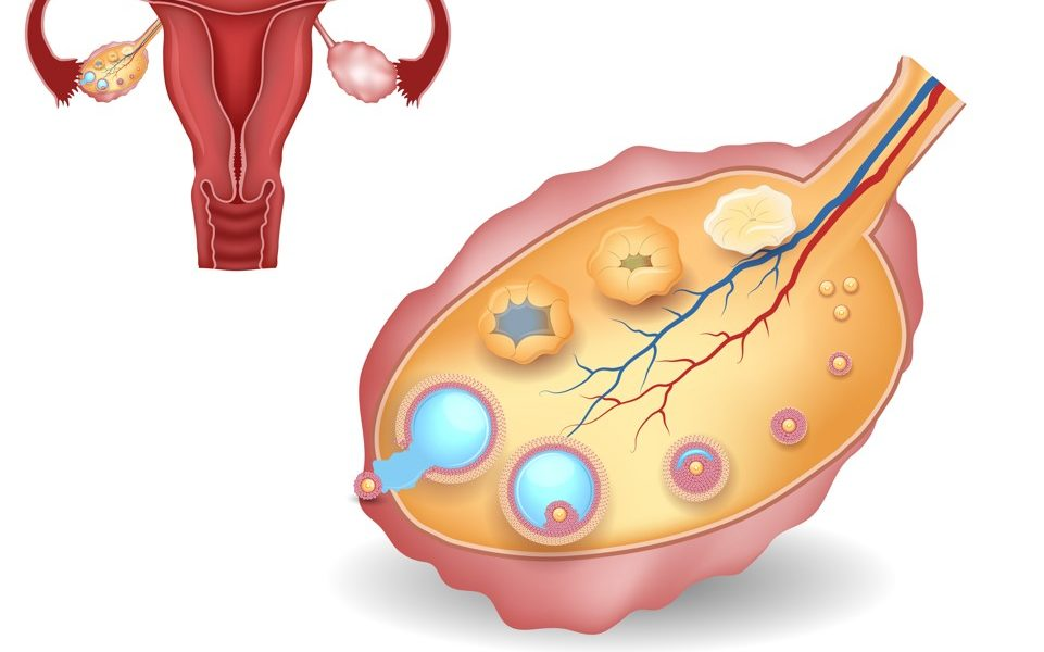 5 Common Reasons for Anovulation